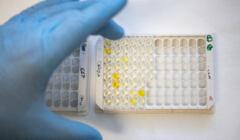 Testy na koronawirusa na UMP w Poznaniu