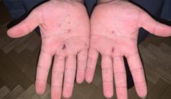 Ręce Majida pokaleczone przez zasieki, fot. Antek Mantorski